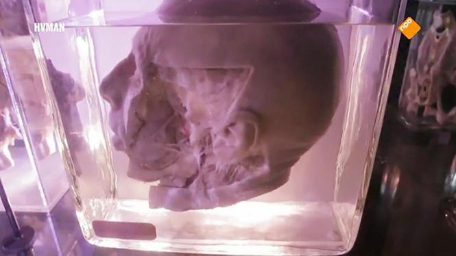 De man rook direct: dit zijn hoofden uit het Amsterdamse lab