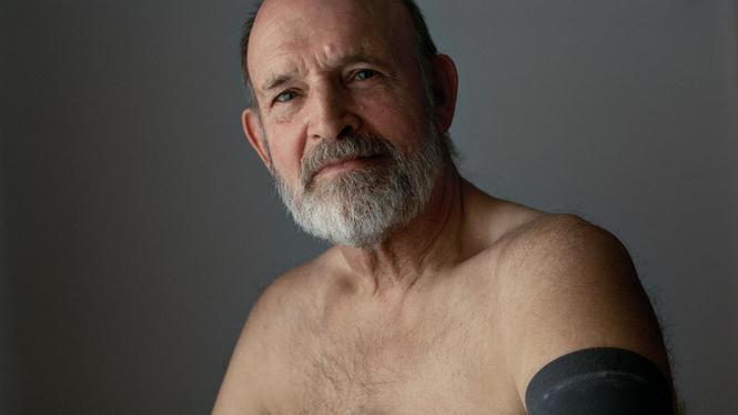Ook veel mannen lijden aan borstkanker
